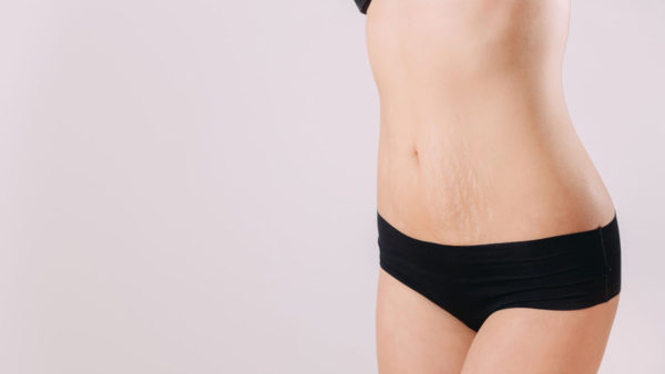 Stretch marks, heal it safely