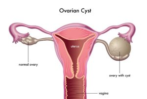 Ovarian Cysts 300x202 - What is PCOS? And why it's important to know?