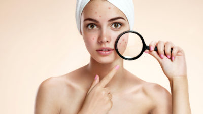 bigstock Teen girl with problem skin lo 83429171 400x225 - The Best Products to Fight Acne